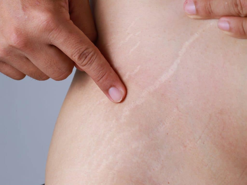 Are There Options For Stretch Marks Removal